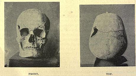 1901 fanden Forschende im Niltal Schädel und Knochen, die sie Pharao Sanacht zuordneten. UZH-Forscher berechneten jetzt, dass dieser seine damaligen Mitmenschen mit einer Körpergrösse von rund 1.87 Metern weit überragte. (Bild: zVg, Jahr 1901)